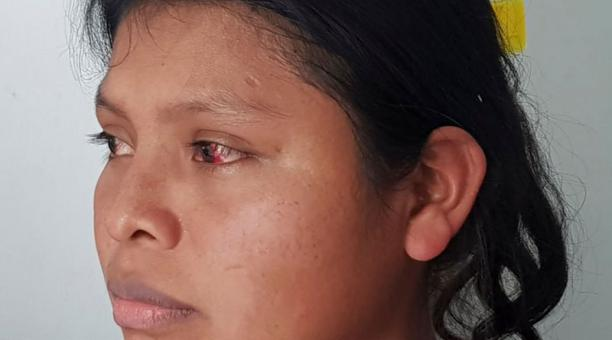 'Me dejaron ciega' a golpes, dice indígena que sobrevivió a masacre de secta en Panamá